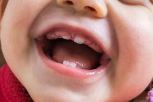 Up-close view of front baby teeth
