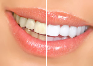 Closeup of before and after teeth whitening in Oak Cliff